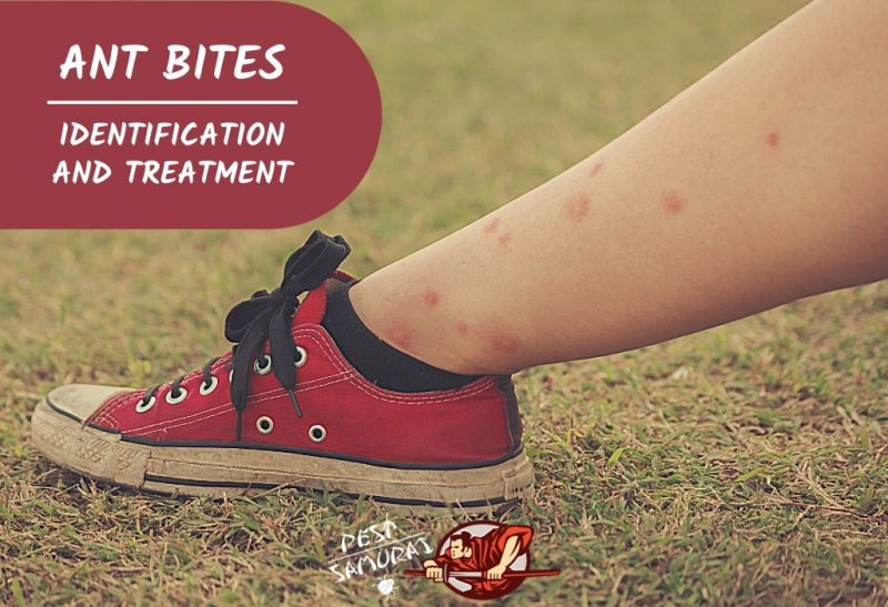 Ant Bites Identification, Treatment, Allergic Reactions & More