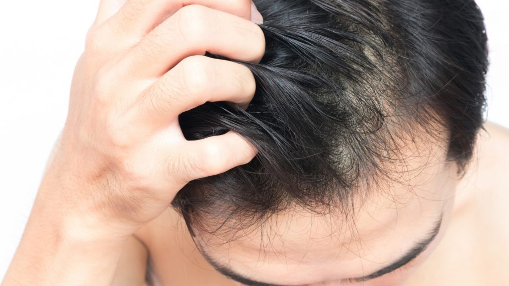 Can Fleas Live in Human Hair (2)